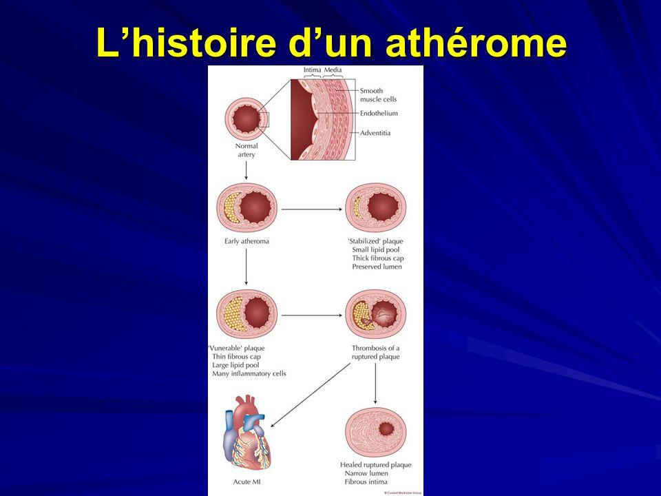 L'histoire d'un athérome