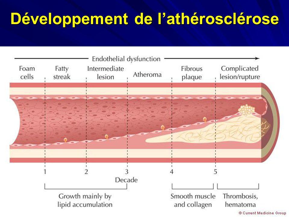 Développement de l'athérosclérose