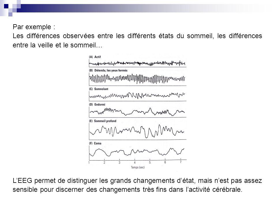 Par exemple : Les différences observées entre les différents états du sommeil, les différences entre la veille et le sommeil…