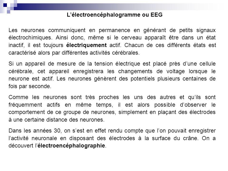 L'électroencéphalogramme ou EEG