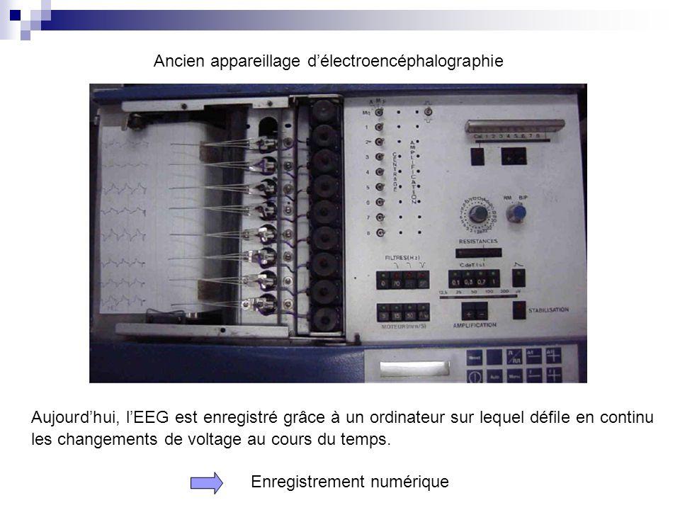 Ancien appareillage d'électroencéphalographie
