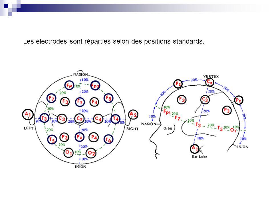 Les électrodes sont réparties selon des positions standards.
