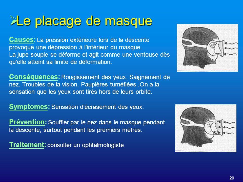 Le placage de masque Causes: La pression extérieure lors de la descente provoque une dépression à l intérieur du masque.