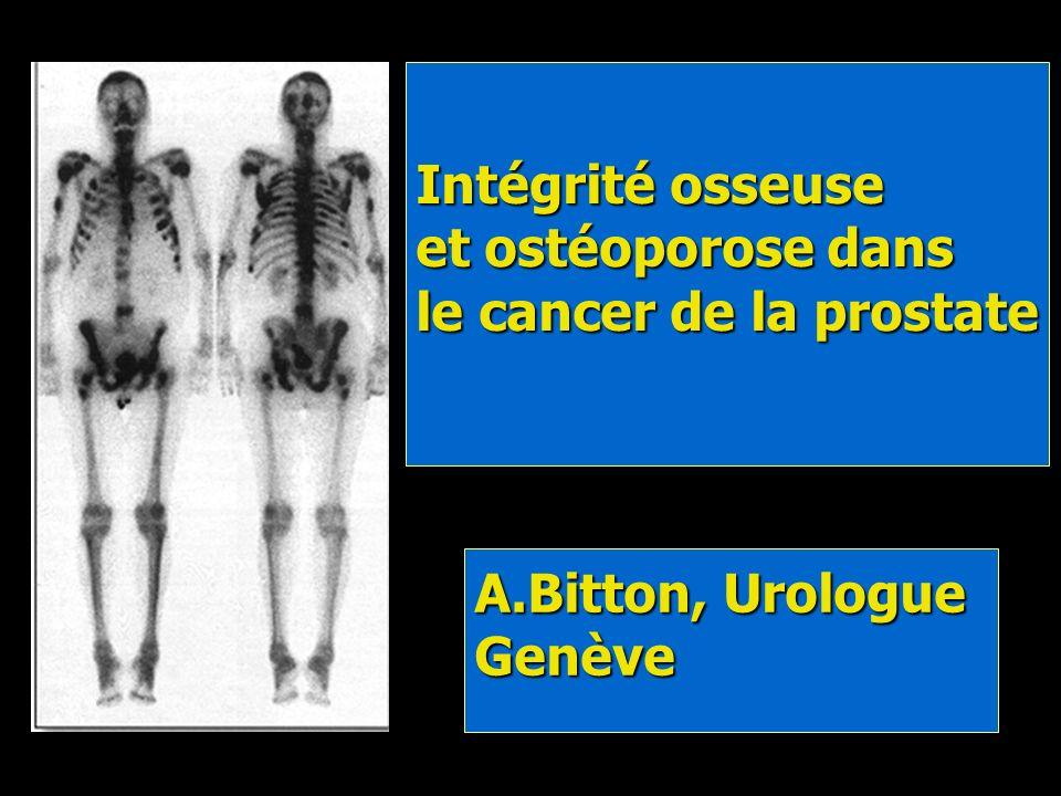 Intégrité osseuse et ostéoporose dans le cancer de la prostate Bitton, Urologue Genève