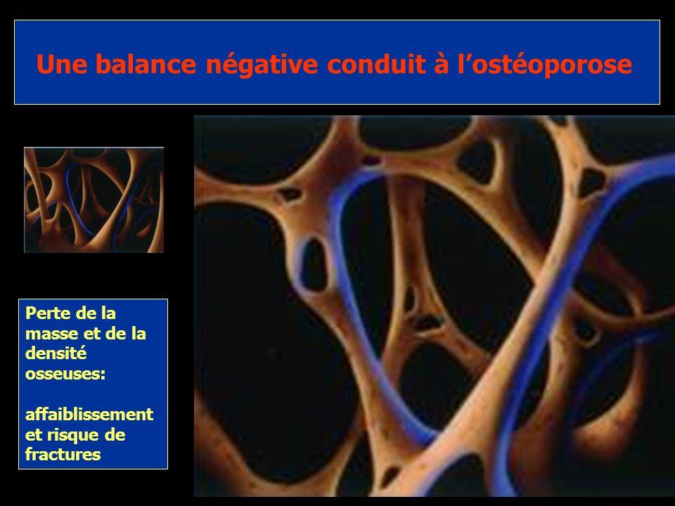 Une balance négative conduit à l'ostéoporose