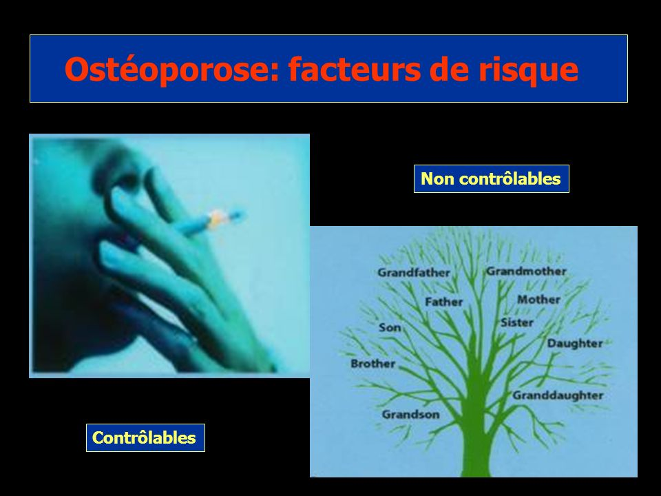 Ostéoporose: facteurs de risque