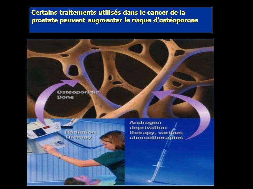 Certains traitements utilisés dans le cancer de la prostate peuvent augmenter le risque d'ostéoporose
