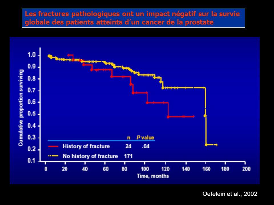 Les fractures pathologiques ont un impact négatif sur la survie globale des patients atteints d'un cancer de la prostate