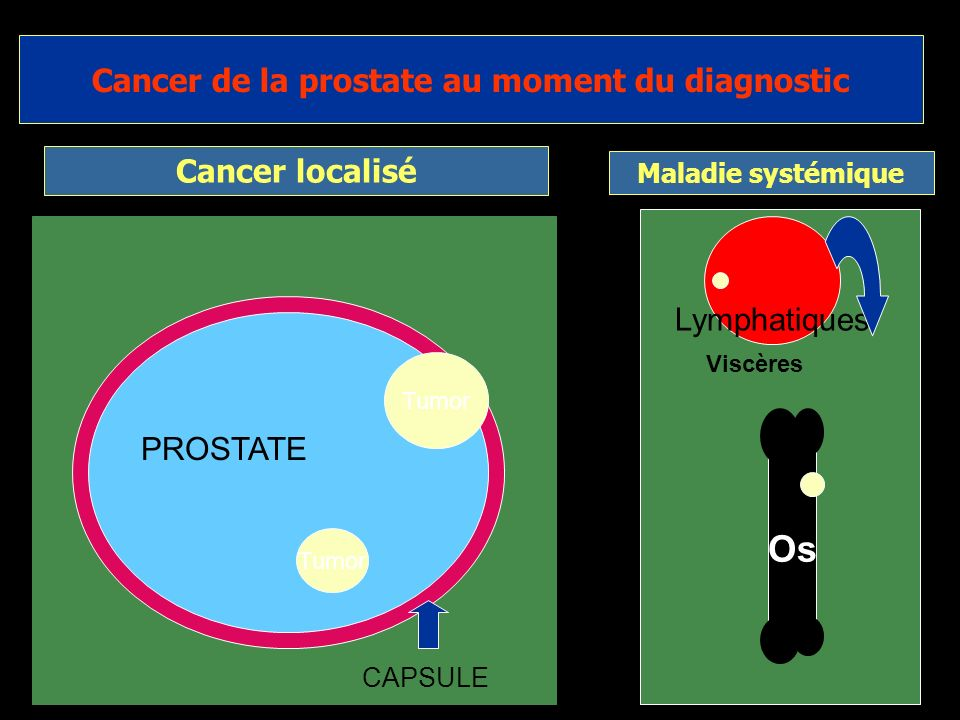 Cancer de la prostate au moment du diagnostic
