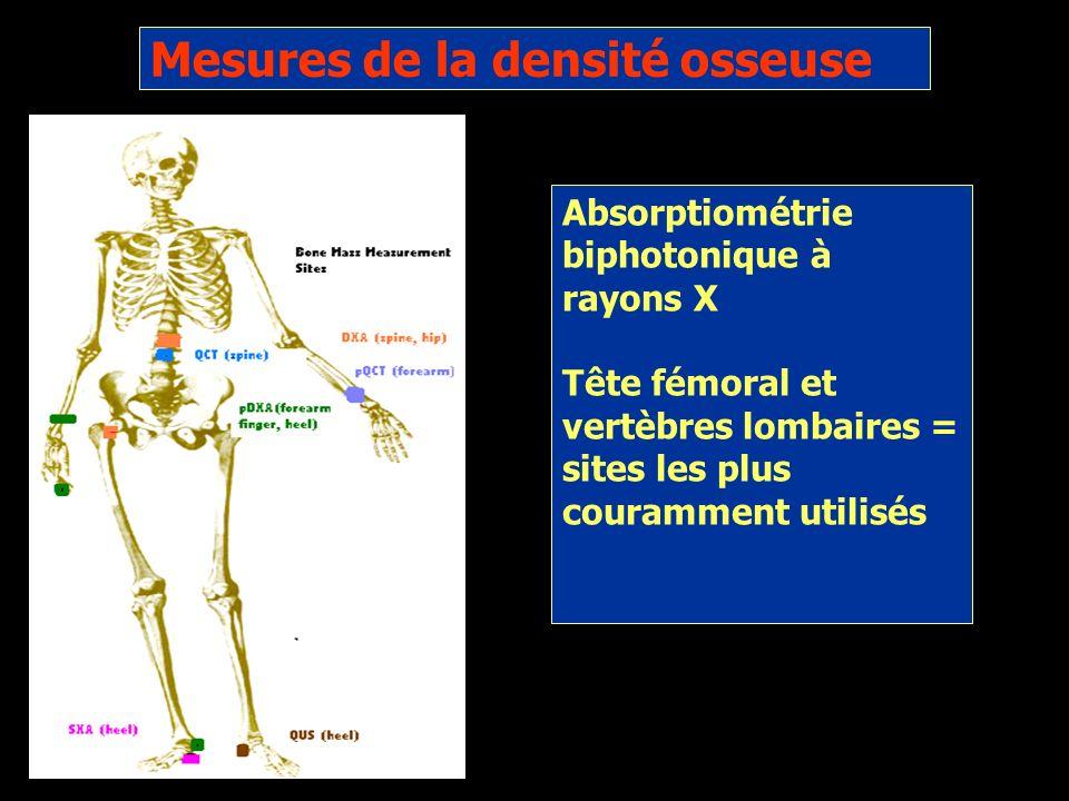 Mesures de la densité osseuse