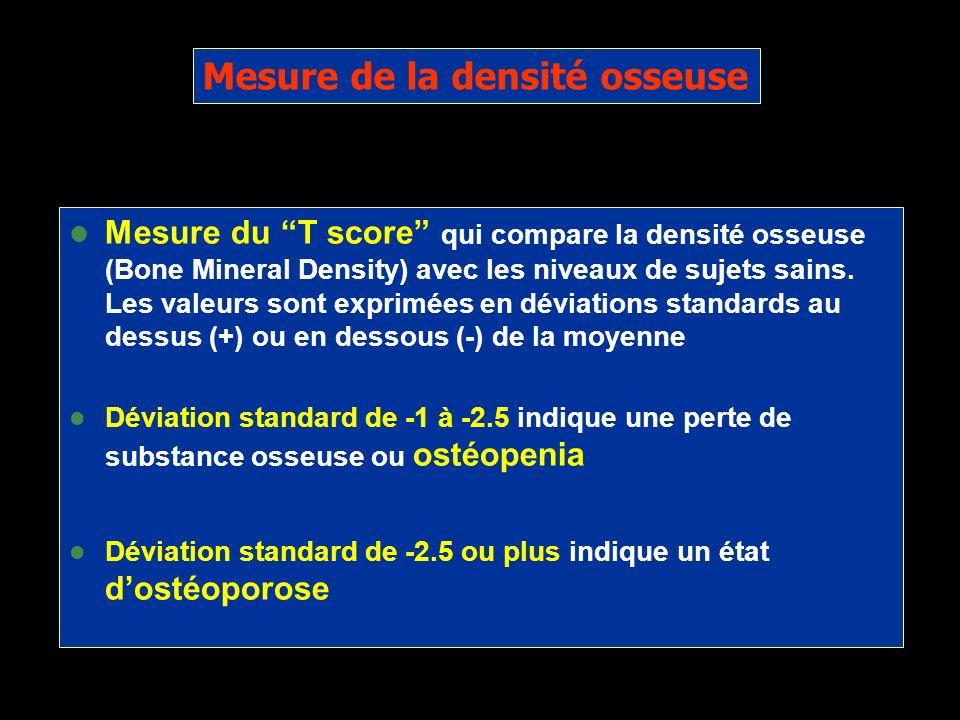 Mesure de la densité osseuse