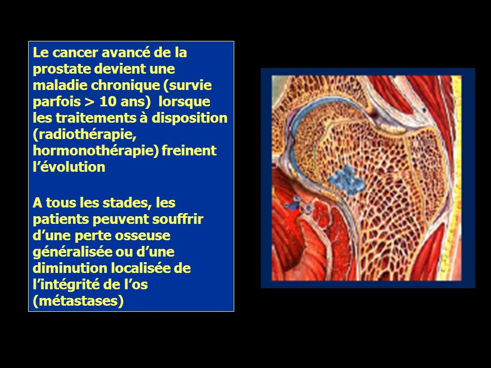 Le cancer avancé de la prostate devient une maladie chronique (survie parfois > 10 ans) lorsque les traitements à disposition (radiothérapie, hormonothérapie) freinent l'évolution