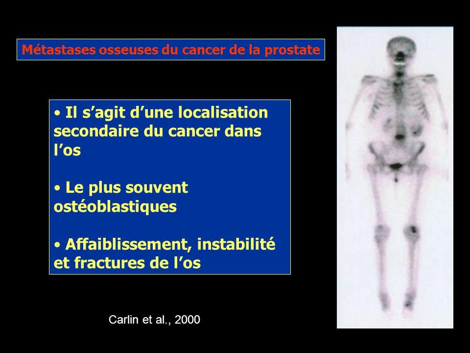 Il s'agit d'une localisation secondaire du cancer dans l'os