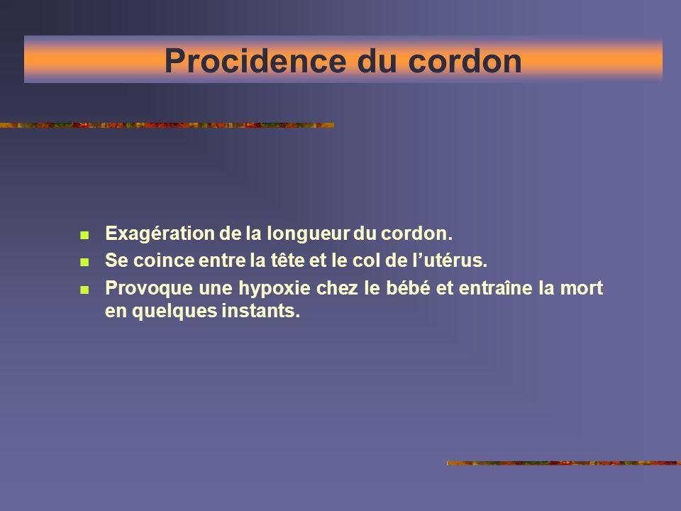 Procidence du cordon Exagération de la longueur du cordon.