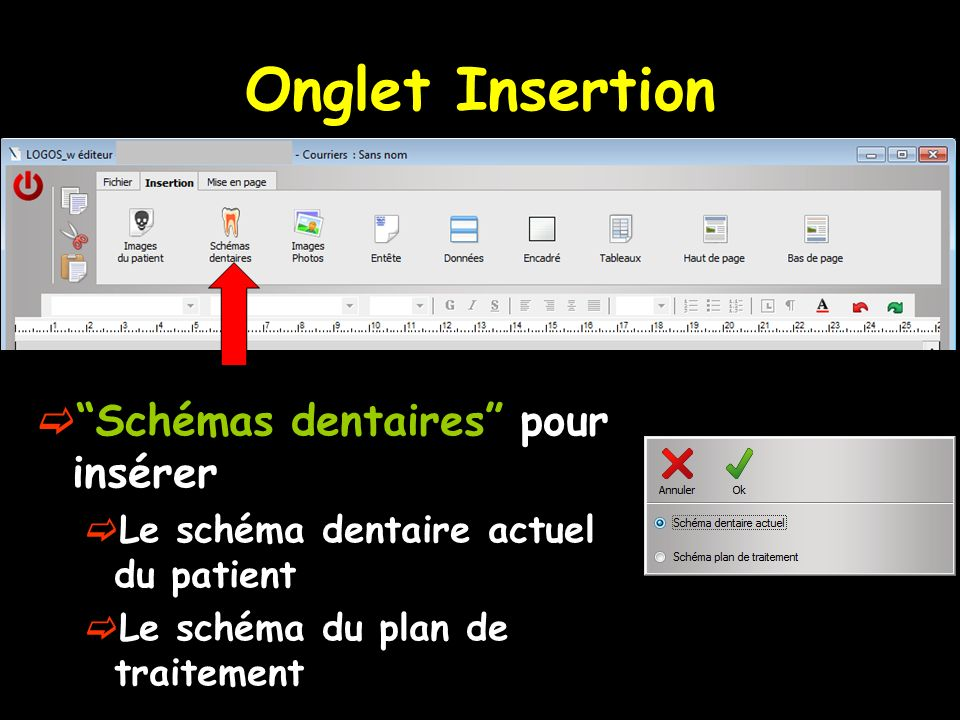 Onglet Insertion Schémas dentaires pour insérer