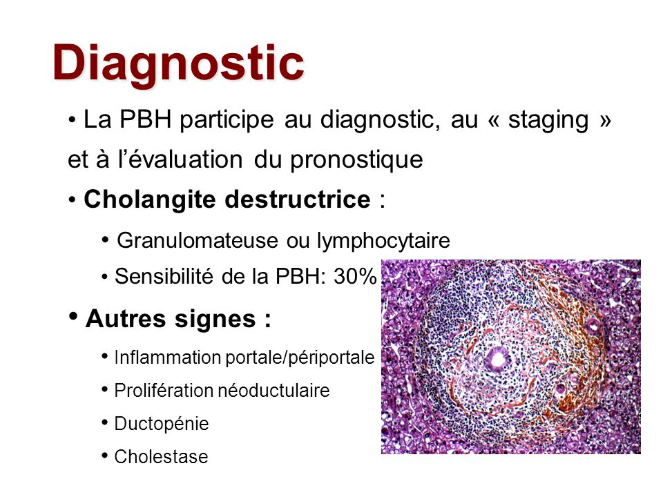 Diagnostic La PBH participe au diagnostic, au « staging » et à l'évaluation du pronostique. Cholangite destructrice :