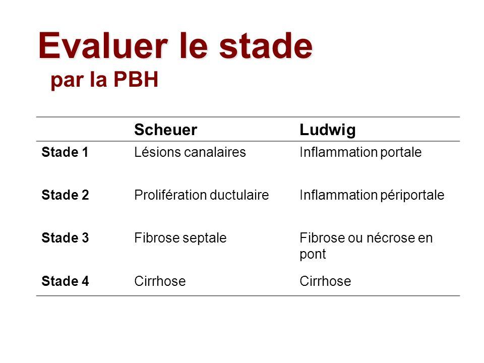 Evaluer le stade par la PBH Scheuer Ludwig Stade 1 Lésions canalaires
