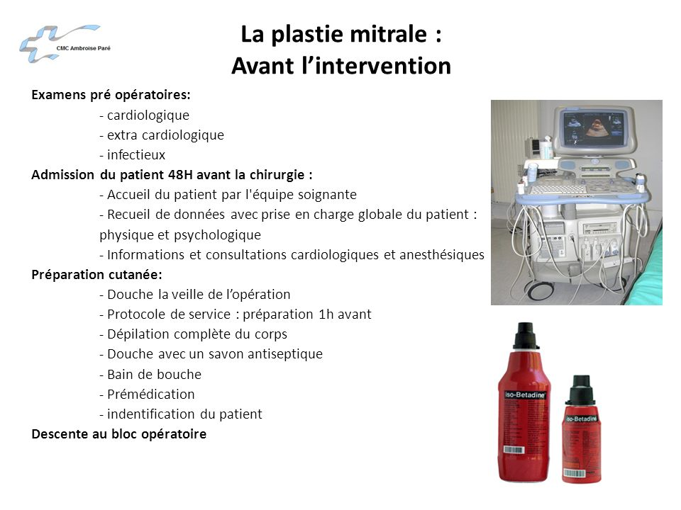 La plastie mitrale : Avant l'intervention