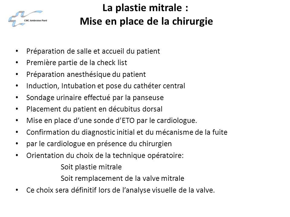 La plastie mitrale : Mise en place de la chirurgie