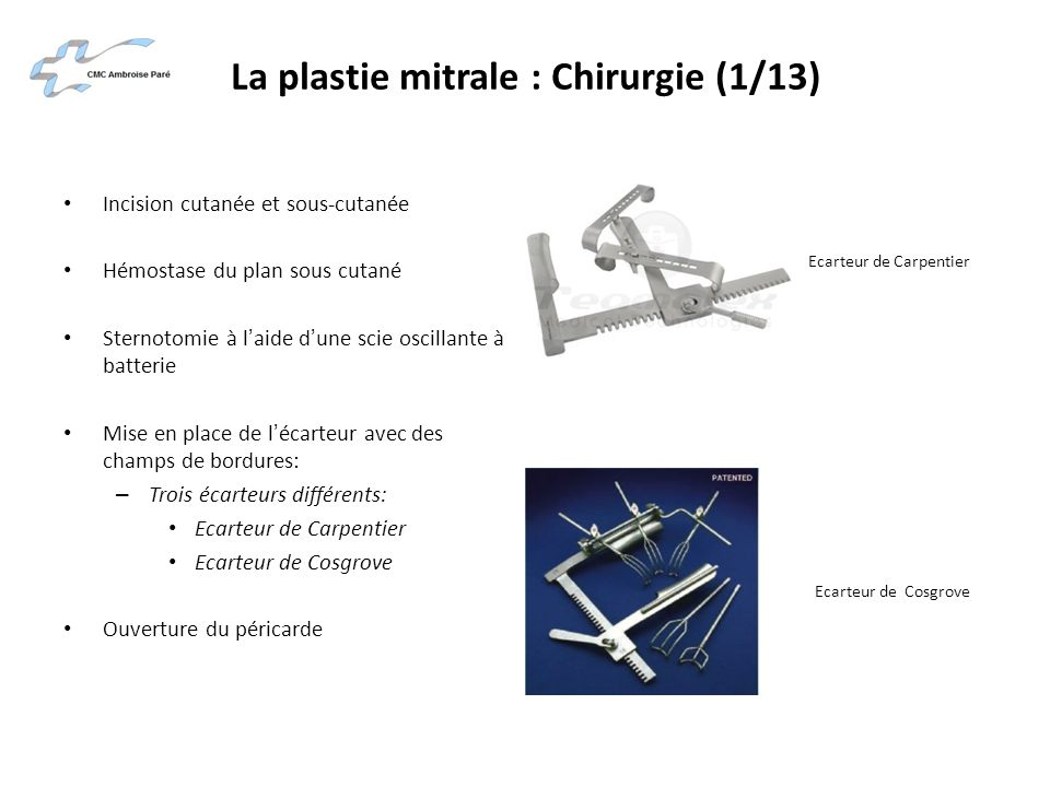 La plastie mitrale : Chirurgie (1/13)