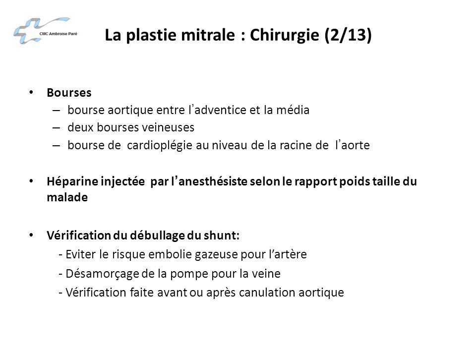 La plastie mitrale : Chirurgie (2/13)