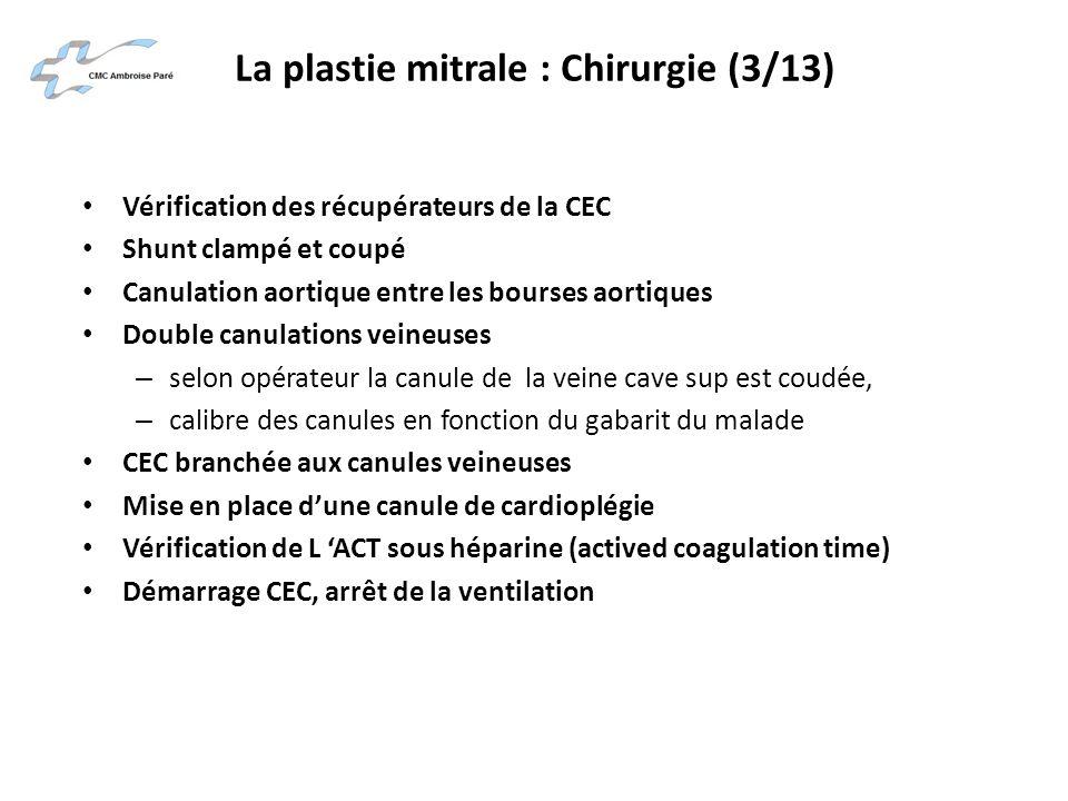 La plastie mitrale : Chirurgie (3/13)