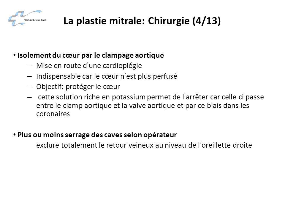 La plastie mitrale: Chirurgie (4/13)