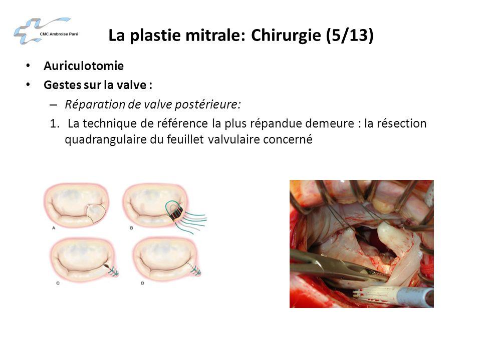 La plastie mitrale: Chirurgie (5/13)