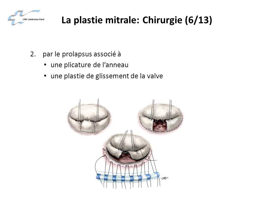 La plastie mitrale: Chirurgie (6/13)