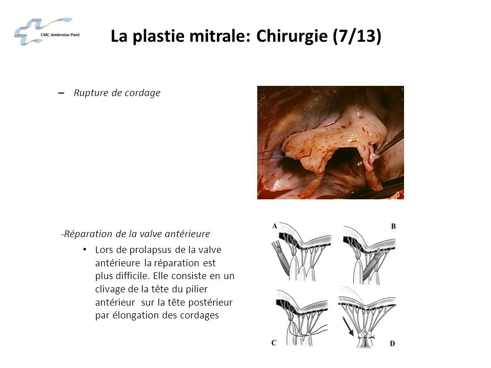 La plastie mitrale: Chirurgie (7/13)