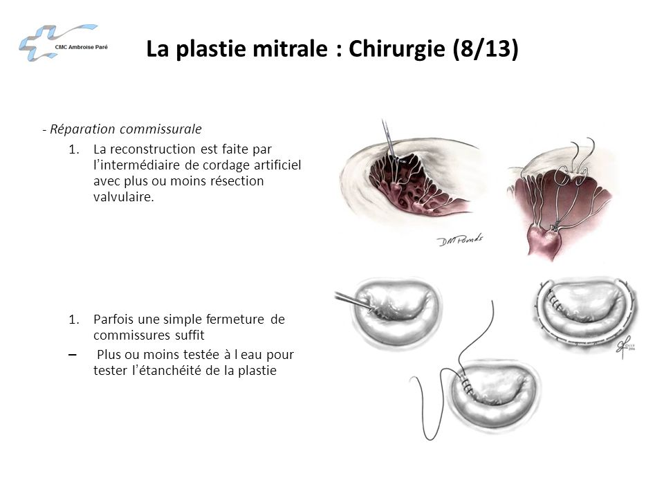 La plastie mitrale : Chirurgie (8/13)