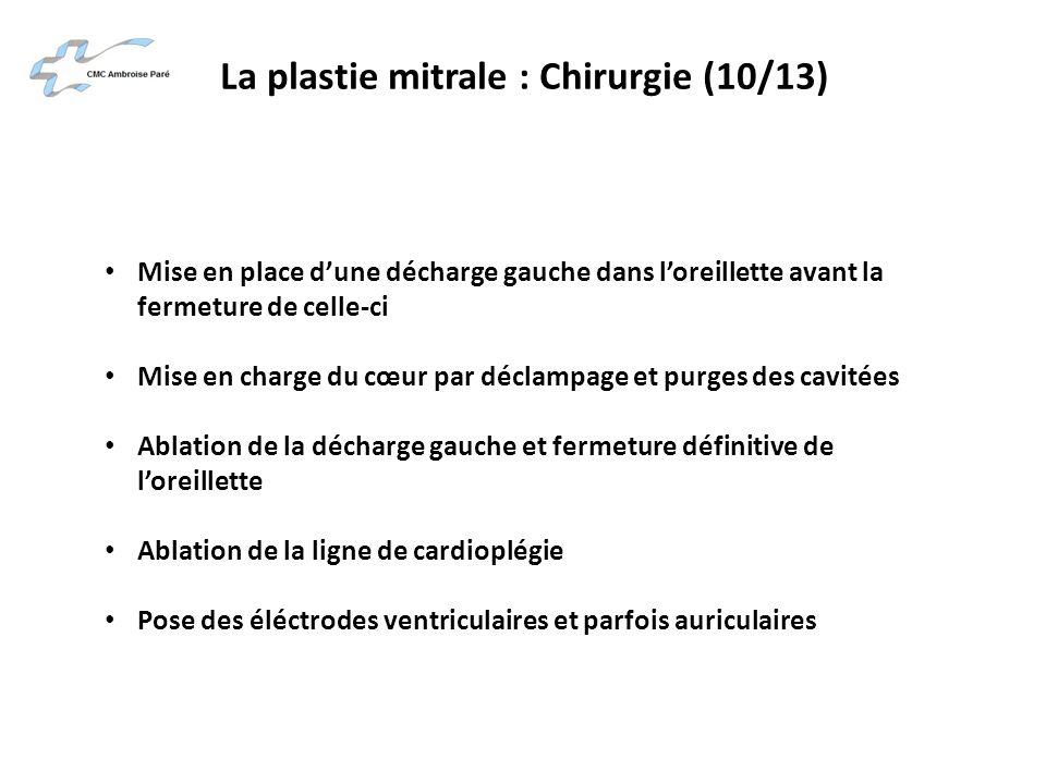 La plastie mitrale : Chirurgie (10/13)