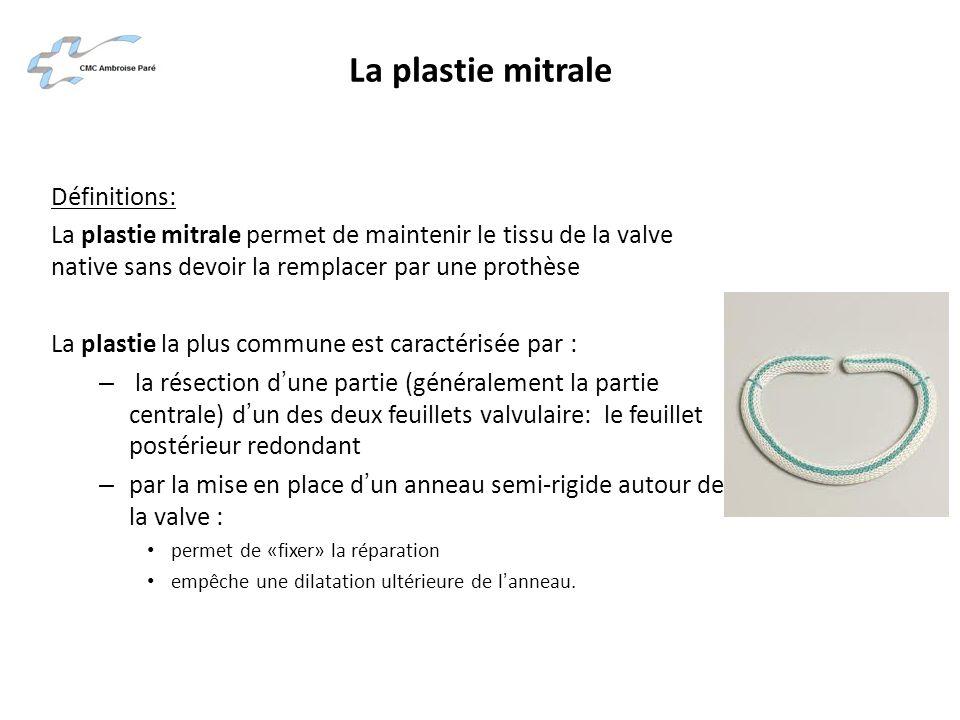 La plastie mitrale Définitions: