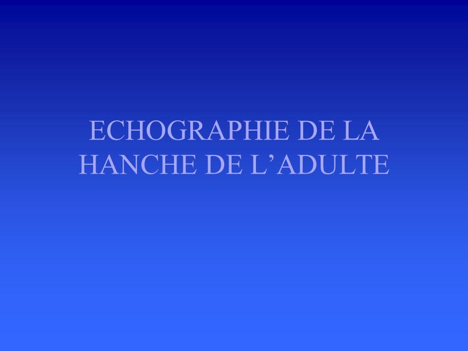 ECHOGRAPHIE DE LA HANCHE DE L'ADULTE