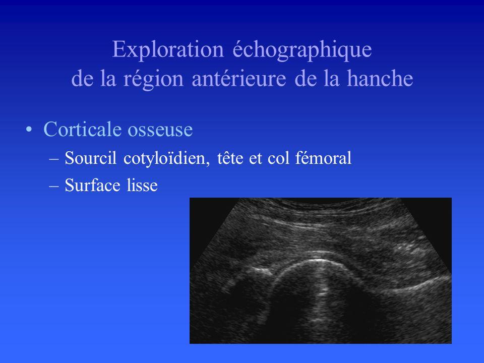 Exploration échographique de la région antérieure de la hanche