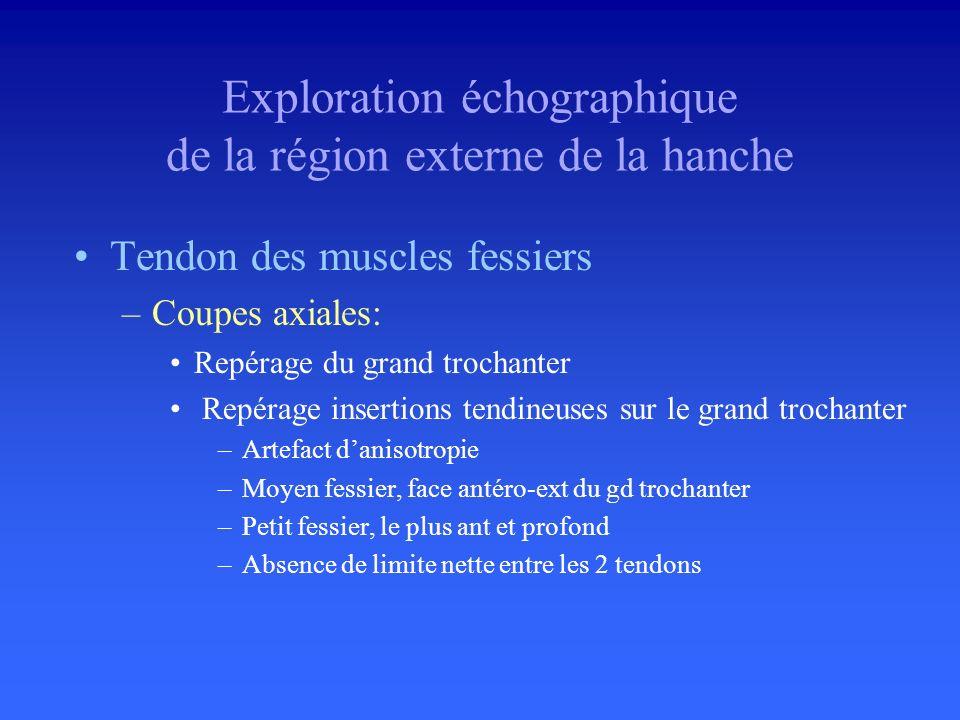 Exploration échographique de la région externe de la hanche
