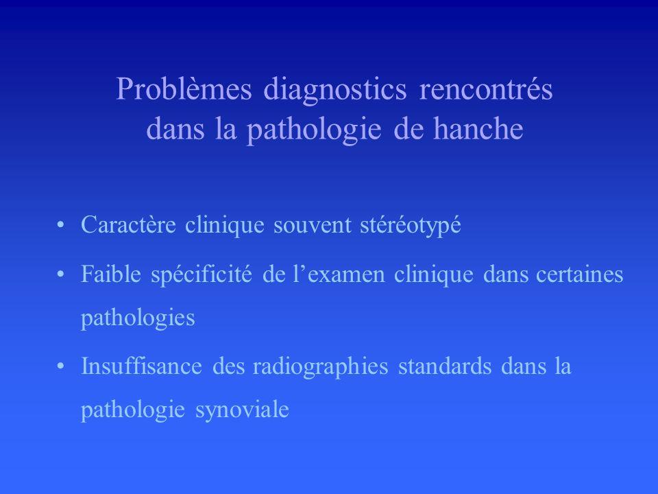 Problèmes diagnostics rencontrés dans la pathologie de hanche