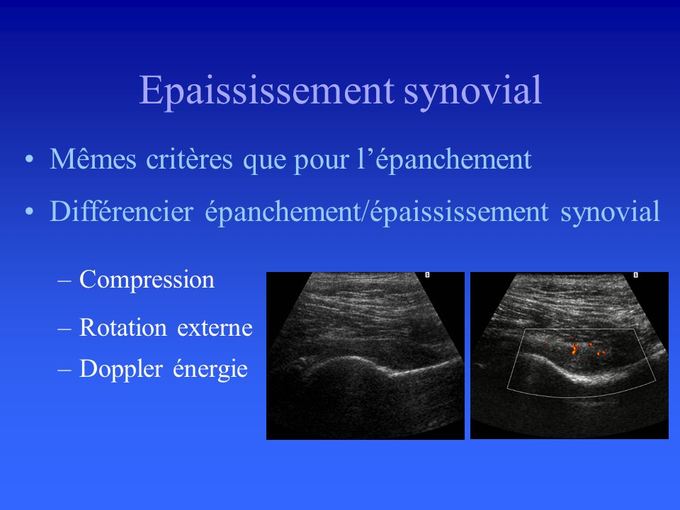 Epaississement synovial