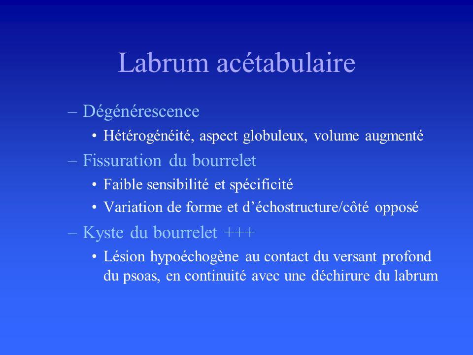 Labrum acétabulaire Dégénérescence Fissuration du bourrelet