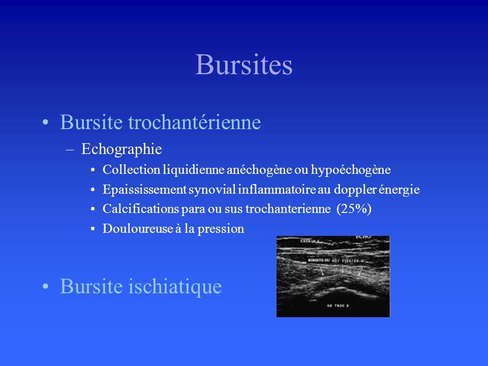 Bursites Bursite trochantérienne Bursite ischiatique Echographie