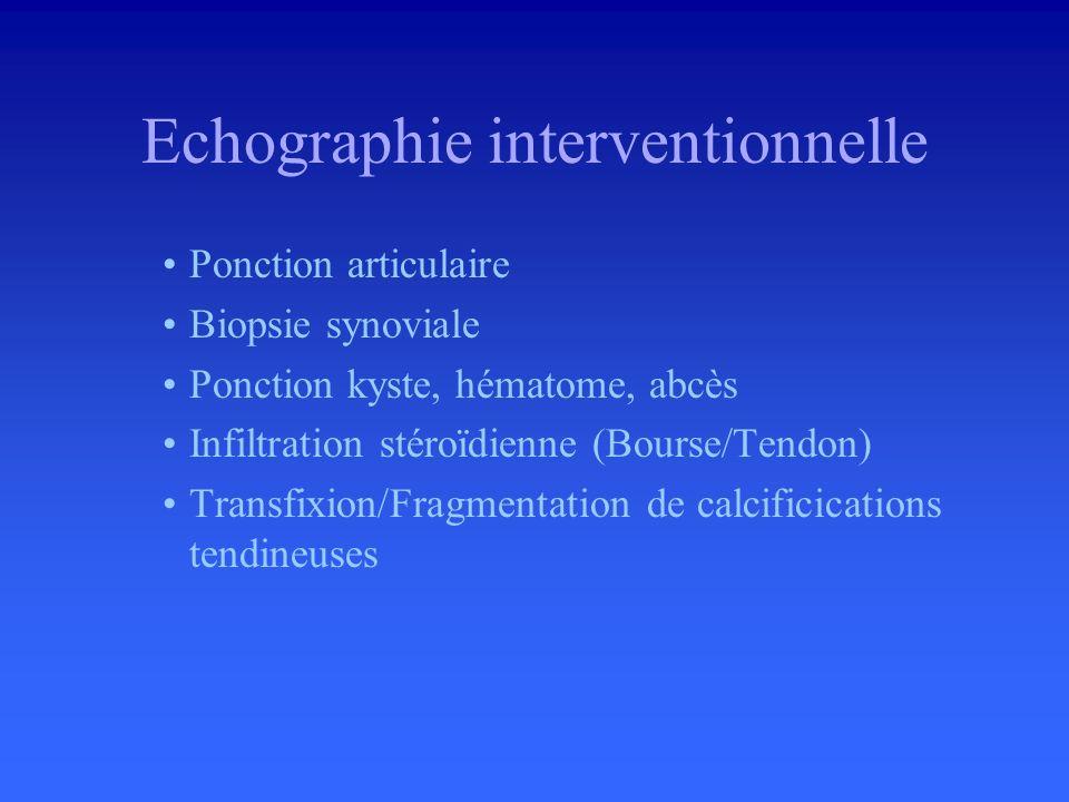 Echographie interventionnelle