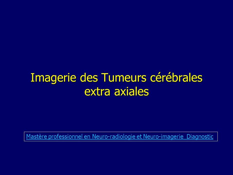 Imagerie des Tumeurs cérébrales extra axiales