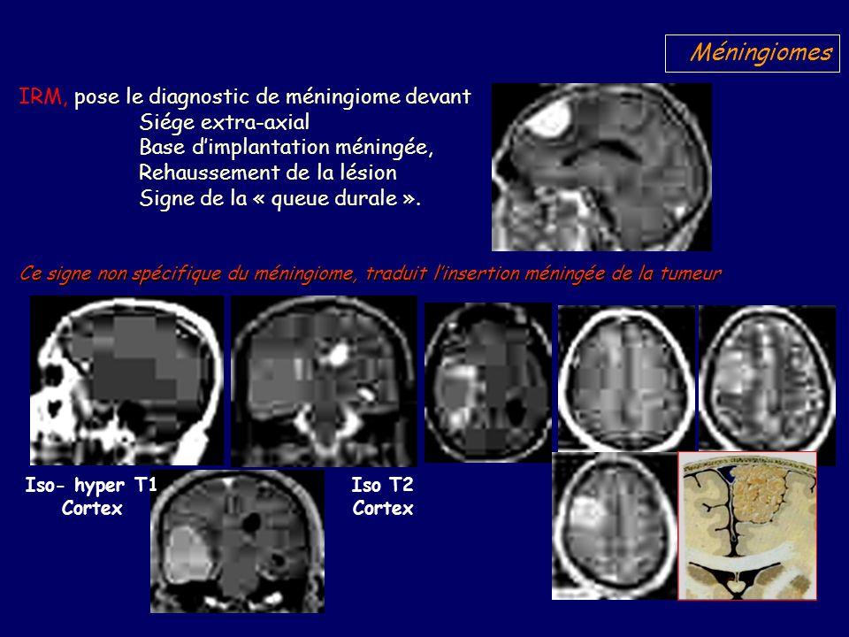 Méningiomes IRM, pose le diagnostic de méningiome devant