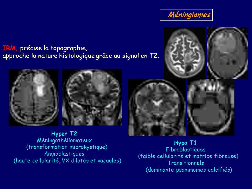 Méningiomes IRM, précise la topographie,
