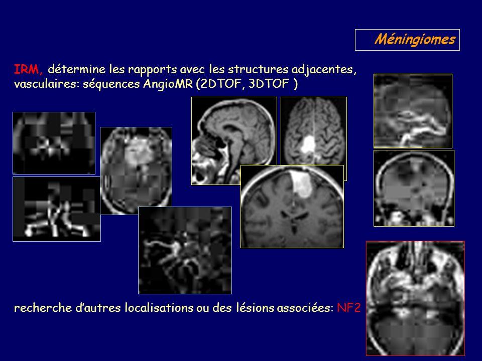 Méningiomes IRM, détermine les rapports avec les structures adjacentes, vasculaires: séquences AngioMR (2DTOF, 3DTOF )
