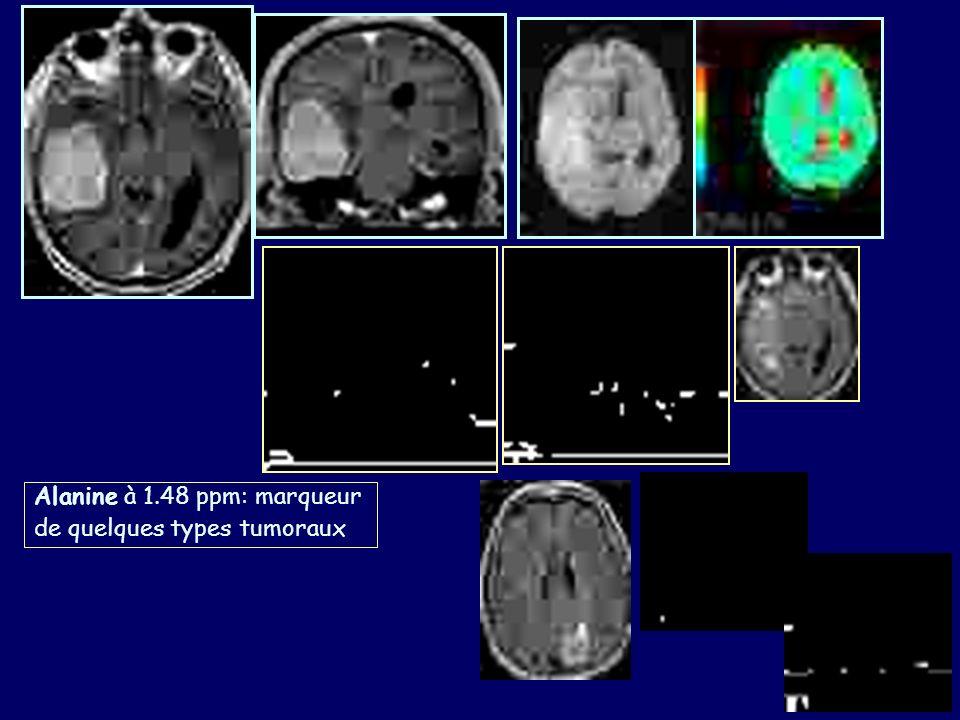 Alanine à 1.48 ppm: marqueur de quelques types tumoraux