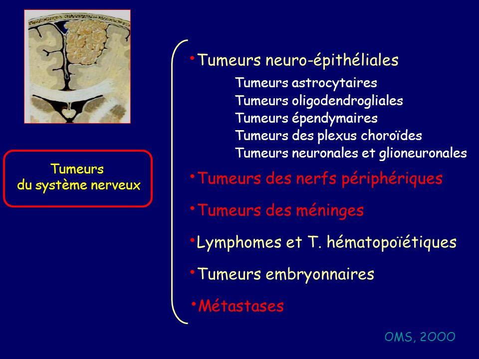Tumeurs neuro-épithéliales
