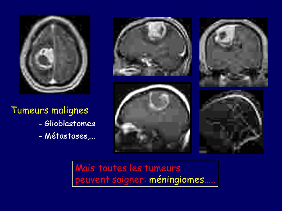 Mais toutes les tumeurs peuvent saigner: méningiomes…..