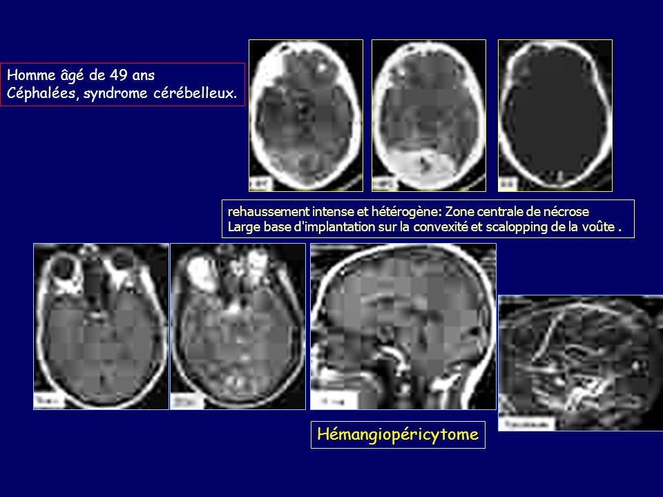 Hémangiopéricytome Homme âgé de 49 ans