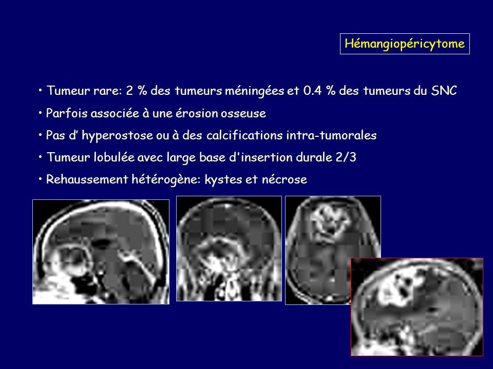 Hémangiopéricytome Tumeur rare: 2 % des tumeurs méningées et 0.4 % des tumeurs du SNC. Parfois associée à une érosion osseuse.